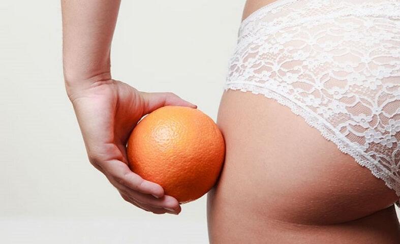 Hábitos que causan más celulitis
