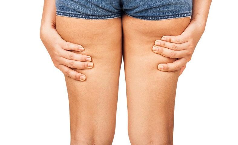 Ejercicios para deshacerte de la flacidez en las piernas
